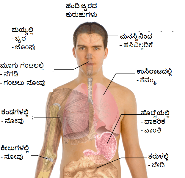 Symptoms-swine-flu_1